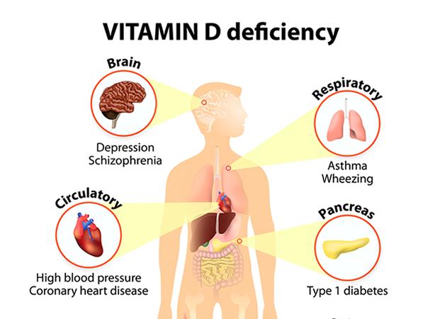 carenza vitaminica